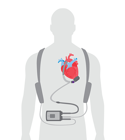 How to wear an LVAD